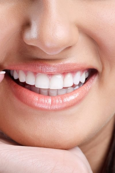Information On How Teeth Whitening Works And Why You Should Consider It