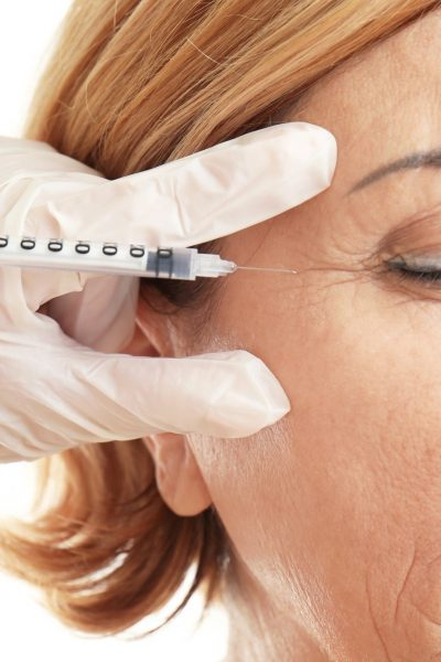 Everything You Need to Know Before Going For Botox Treatment