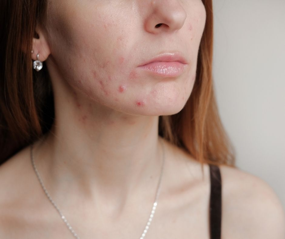 Everything about Cystic Acne: Causes, Symptoms, Treatment