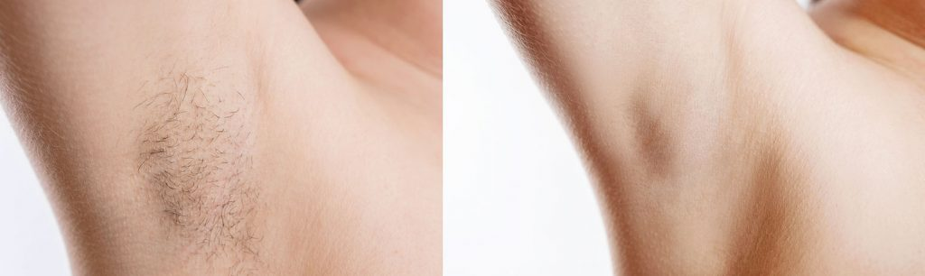 the result of Laser hair Removal