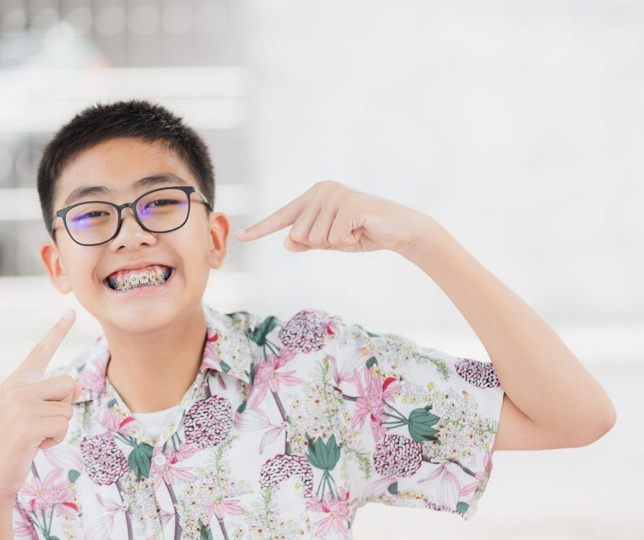 When Should Your Child Get Braces?
