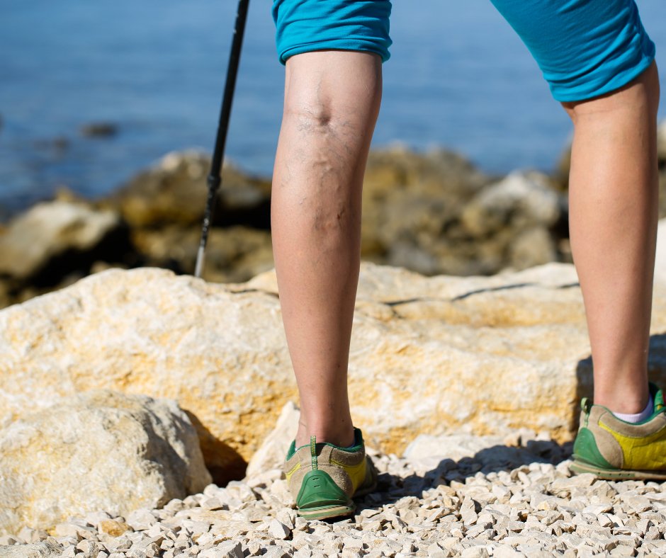 Top 5 Reasons Why You Must Choose Varicose Vein Treatment