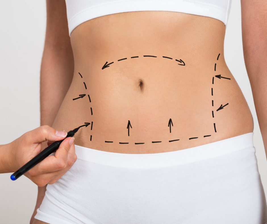Tummy Tuck vs Liposuction for a Flat Belly