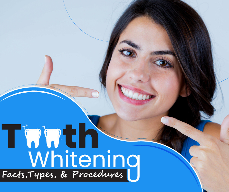 Teeth Whitening: Facts, Types, and Procedures
